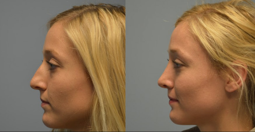 Rhinoplasty in Northern Alabama and the Huntsville Area