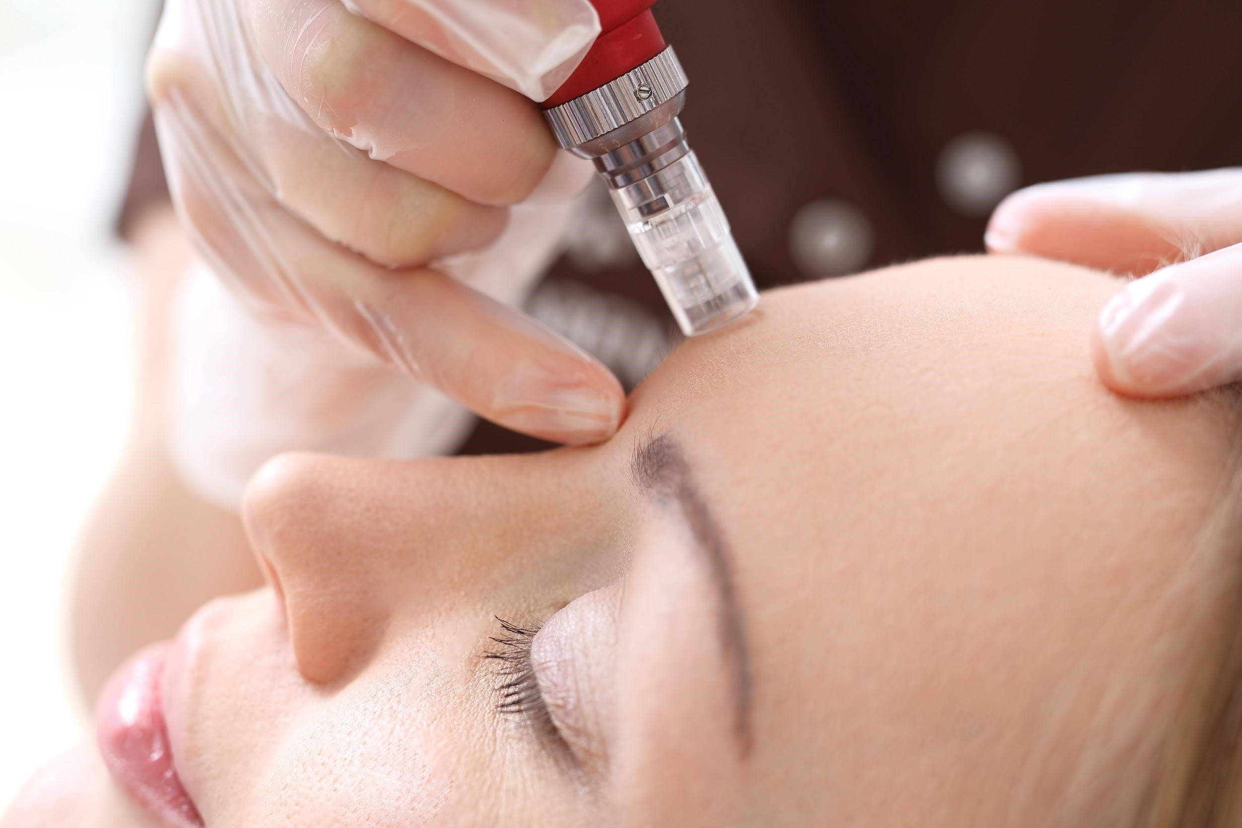 Microneedling in Northern Alabama and the Huntsville Area