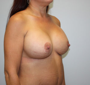 Breast Lift Before and After Pictures Huntsville, AL