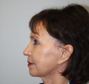 Blepharoplasty Before and After Pictures Huntsville, AL