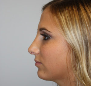 Chin Implant Before and After Pictures Huntsville, AL