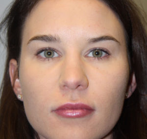 Lip Augmentation Before and After Pictures Huntsville, AL