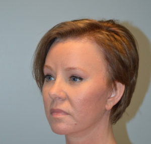 Brow Lift Before and After Pictures Huntsville, AL