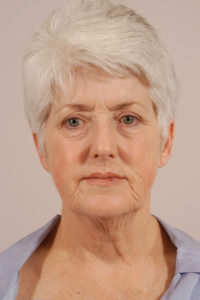 FACELIFT BEFORE AND AFTER PICTURES IN NORTHERN ALABAMA AND THE HUNTSVILLE AREA