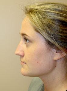 Rhinoplasty Before Pics