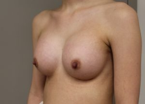 Breast aug after photo