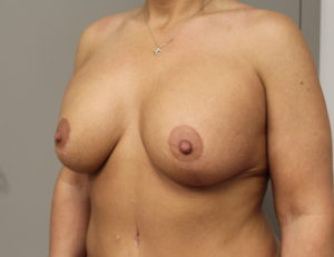 Breast aug with lift