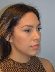 Rhinoplasty and chin implant after photos